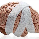 Los Mejores Abogados en Español de Lesiones Cerebrales Para Mayor Compensación en Orange County California